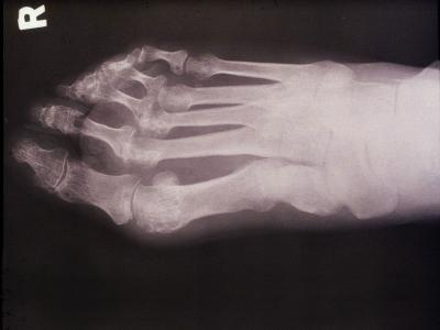 Микоплазма поражение суставов - Лечение Суставов