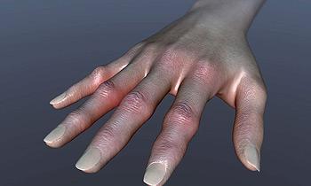 Артрит — народные средства лечения артрита — НАРМЕД — Лечение и ...