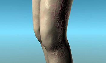 Клинический анализ крови как сдавать из пальца или вены