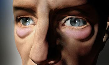 Как убрать темные круги под глазами народная медицина